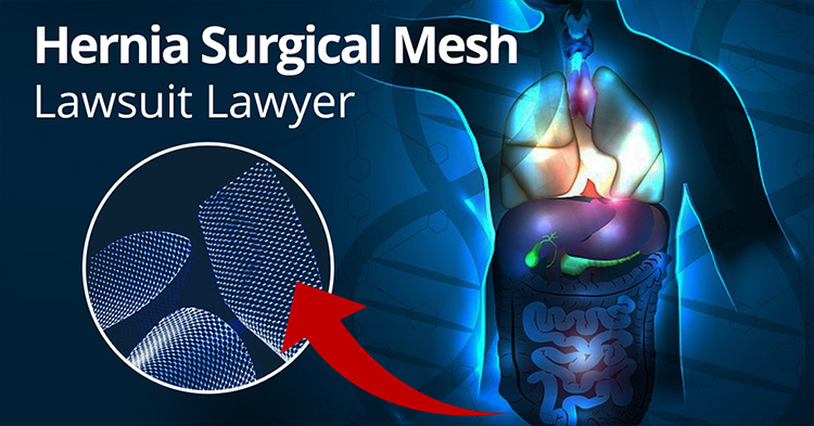 All You Need to Know About a Hernia Mesh Lawsuit – Pix Me